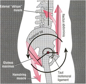 posterior pelvic tilt 1