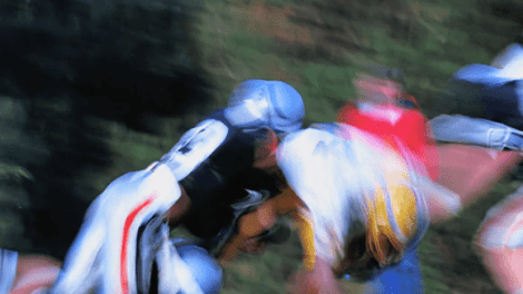fracture - Broken, Sprained Neck: These Sports Pose the Most Risk