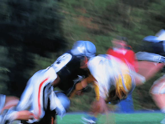 fracture - Fracturas y torceduras de cuello: estos son los deportes que plantean el mayor riesgo
