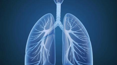 lung - La tasa de cáncer de pulmón es ahora más elevada en las mujeres jóvenes que en los hombres jóvenes
