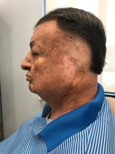IMG 4730 225x300 - A MAN FROM ORLANDO RECEIVES AN EAR PROSTHESIS AND HIS LIFE IS CHANGED FOREVER