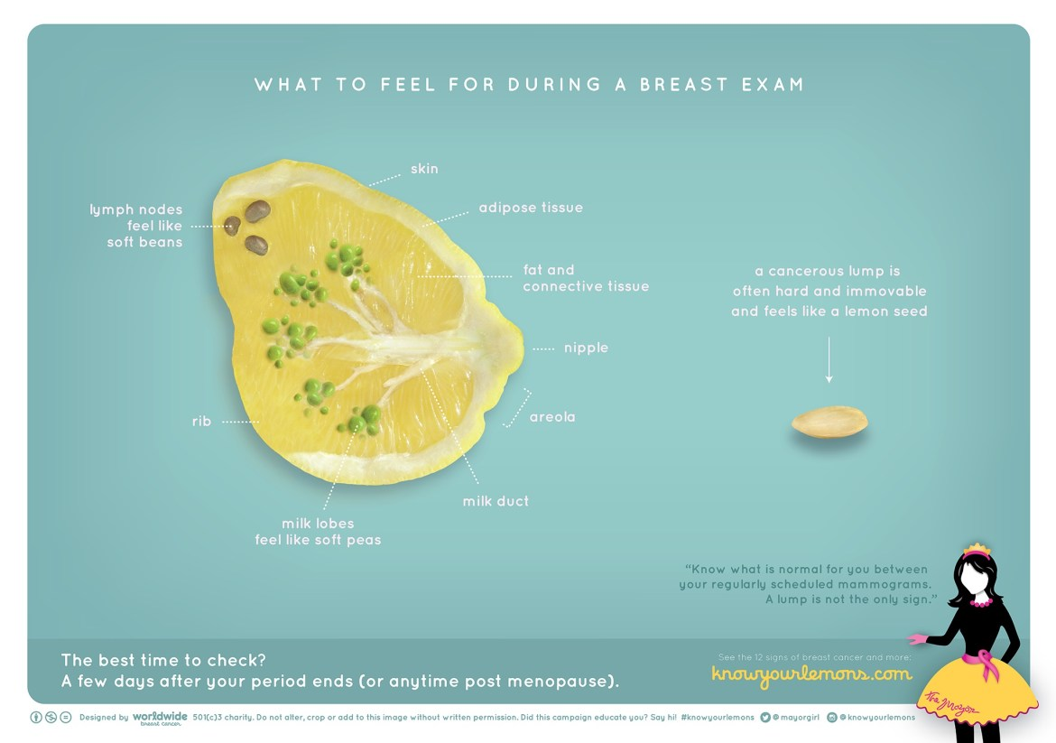 Image from www.worldwidebreastcancer.com/research/ showing a sliced-through lemon, indicating what might be felt during a breast exam, including lymph nodes and milk nodes