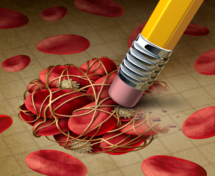 Image depicting the removal of sticky platelets and fibrin to reduce coagulation disorders in cancer from CALMERme.com