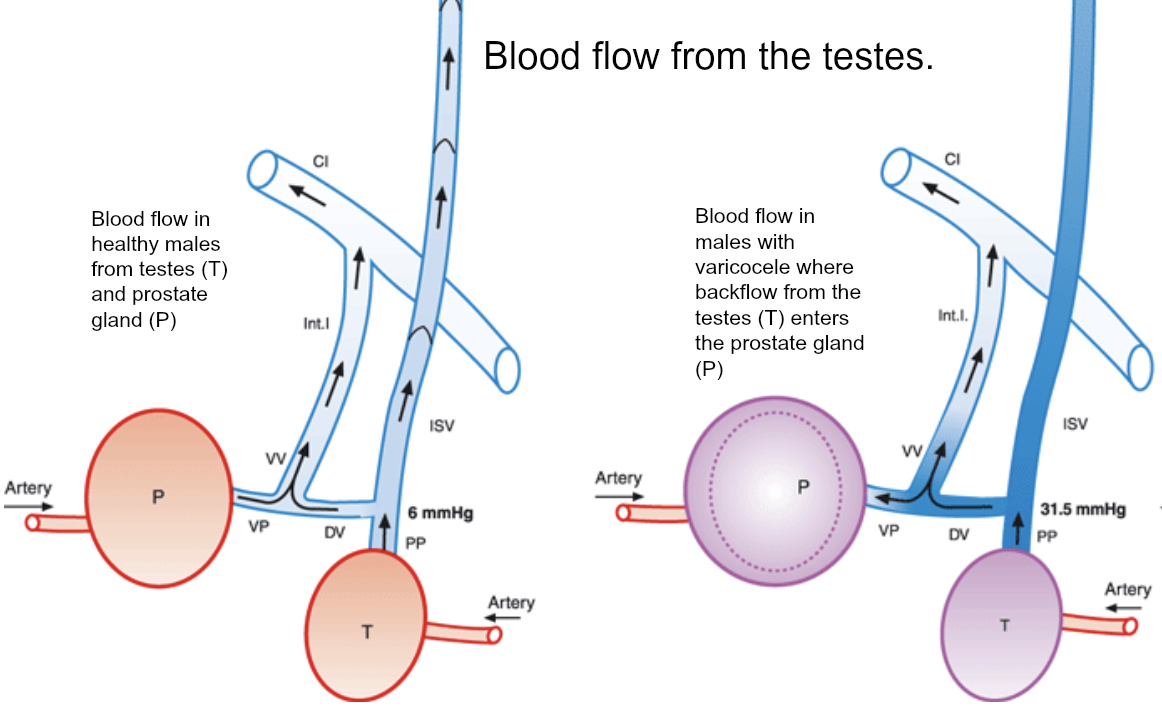 Diagram of blood flow with varicocele from CALMERme.com