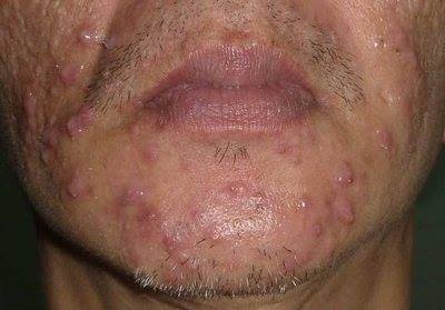 acne or pimples