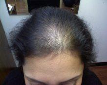 Hair-Loss-Women