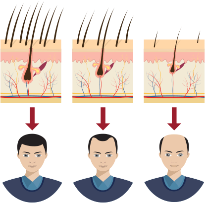 Propecia Calvitie Alopécie