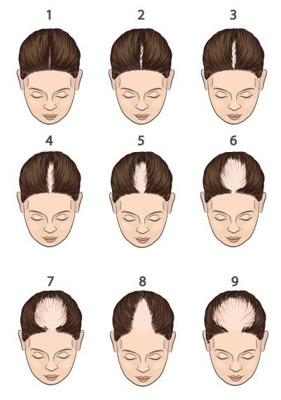 Calvitie Femme Androgénétique Alopécie chute de cheveux