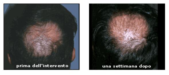 post-trapianto-capelli