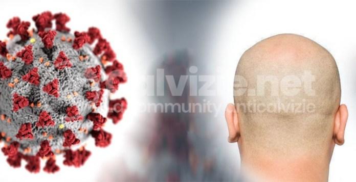 coronavirus e calvizie