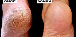 topuklar önce ve sonra