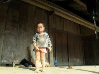 Hau Thao (91)