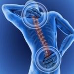 I 5 consigli d'oro per migliorare la postura e alleviare il mal di schiena