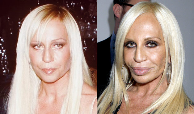 I have often wondered about Donatella Versace's aesthetics sense