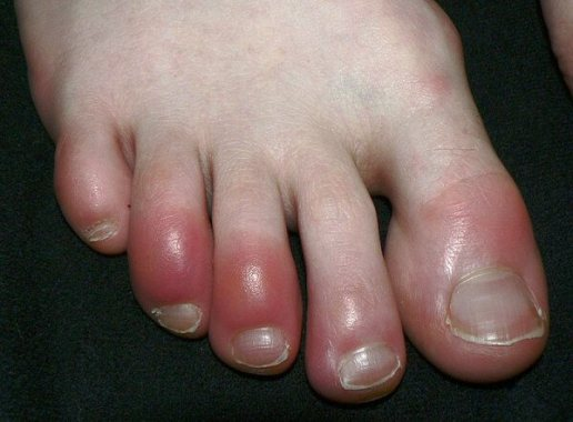 Image of sore toenail after hiking