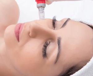 Estética facial Marilia Leão Saúde Estética