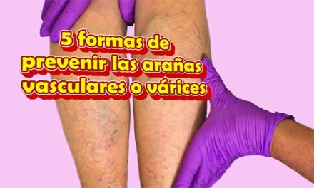 Como Prevenir las Arañas Vasculares o Varices o Arañitas en las piernas