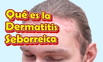 Qué es la Dermatitis Seborreica, cuáles son sus Síntomas y Tratamiento