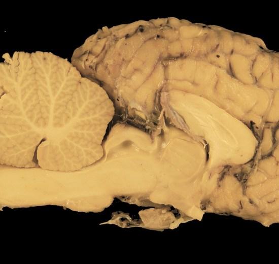 organoides cerebro