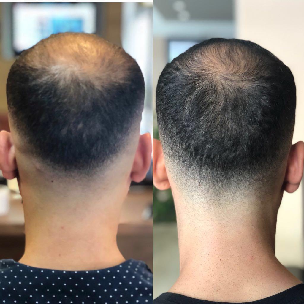 Procapsin® Endlich wieder Haare