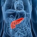 膵臓がんの新しい治療法に関する海外ニュース