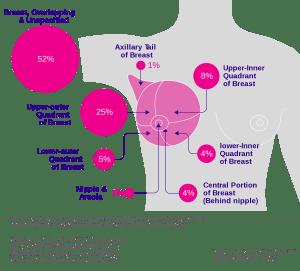 乳癌檢查 乳癌診斷