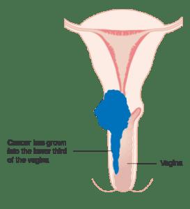 子宮頸癌轉移