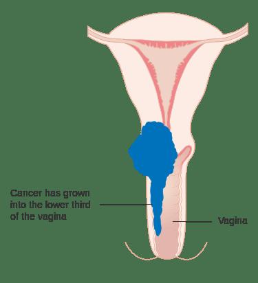 子宮頸癌飲食