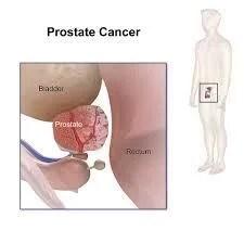 攝護腺癌治療