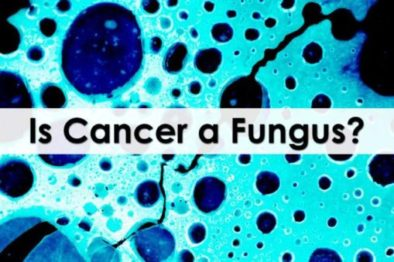 CANDIDA, FUNGUS AND CANCER
