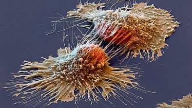 Cancer specific diet and supplement plans