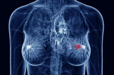 BRCA CANCER GENES