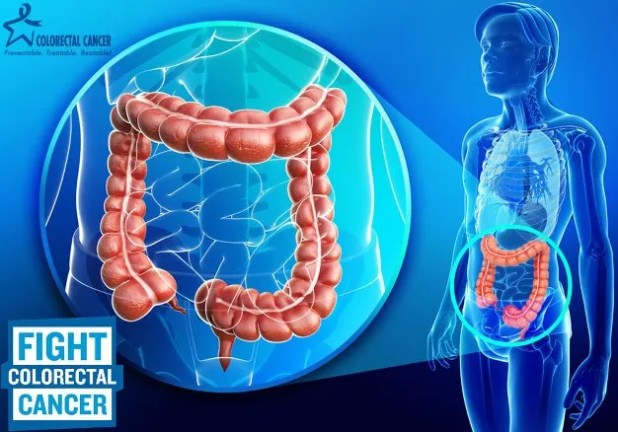 Colorectal Cancer Staging and Prognosis