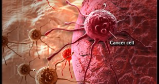 Cancer Malignant, Benign, Tumors, Metastasis, Stages