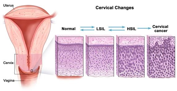 LGSIL/LSIL (Low Grade Squamous Intraepithelial Lesion) Symptoms and Treatment