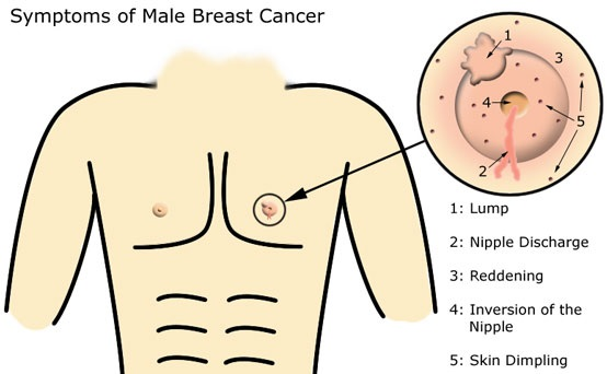 Male Breast Cancer Symptoms and Signs