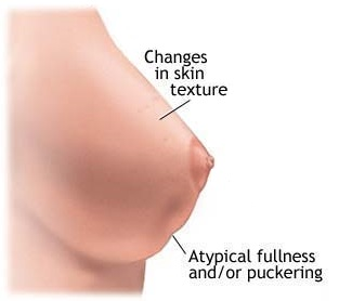 Breast Cancer Breast Discoloration Pictures