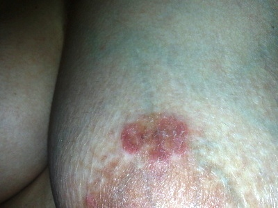Red Spot/Patches on Breasts Pictures
