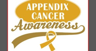 Appendiceal Cancer Symptoms Cause and Treatment