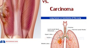 What is Sarcoma vs Carcinoma, Lymphoma, Leukemia Cancer