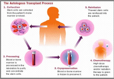 Autologous Stem Cell Transplant Procedure