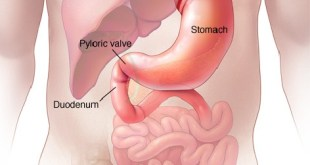 Duodenal Cancer Symptoms, Survival Rate, Treatment