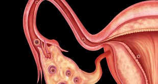 Fallopian Tube Cancer, Symptoms, Survival Rate, Treatment