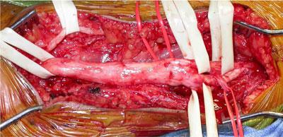 Plexiform Neurofibroma Pictures