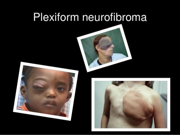 What is Plexiform Neurofibroma? Treatment, Symptoms, Pictures