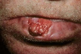 Lip Skin Cancer Pictures