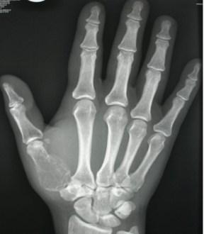 Giant cell tumor of tendon sheath Symptoms, Causes, Diagnosis, Treatment
