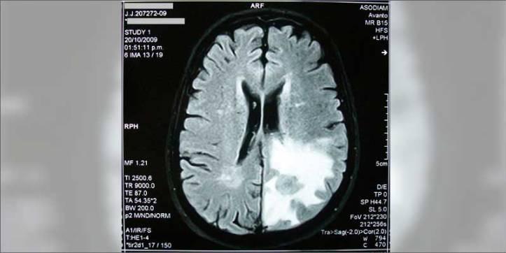 1 how cannabis treats brain cancer scan New Research Confirms Cannabis Kills Brain Cancer, NOT Your Brain