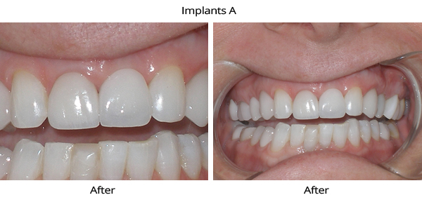 IMPLANTS_a