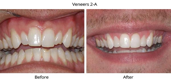veneers_2A